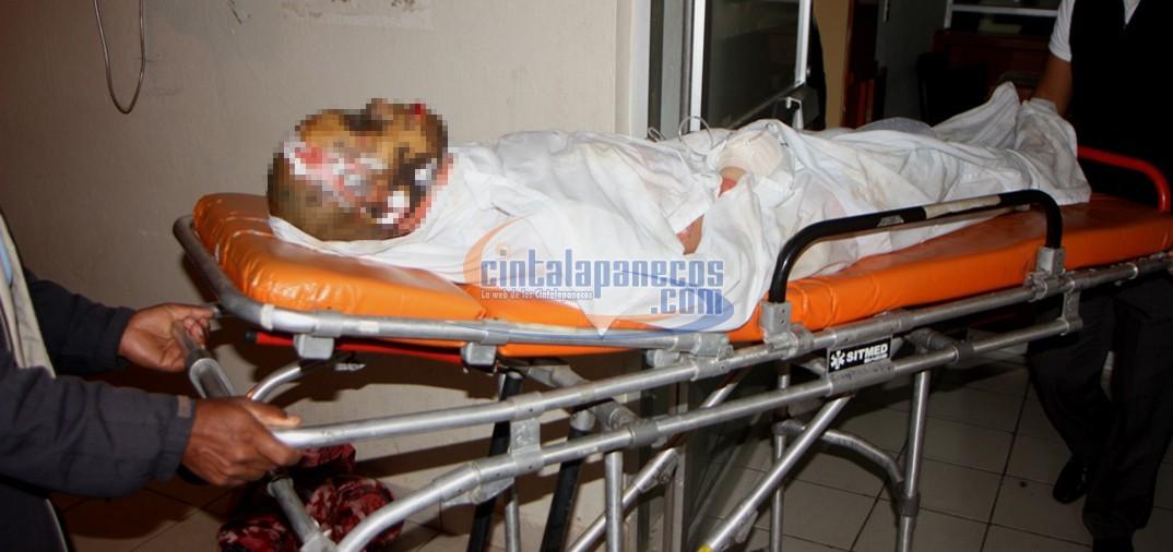 Hombre sufre quemaduras de tercer grado en todo su cuerpo for Quemaduras de cuarto grado